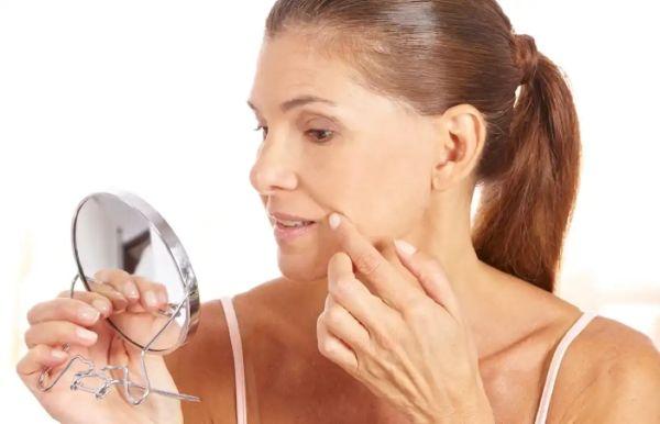 Ранние морщины вокруг губ: отчего появляются и как избавиться