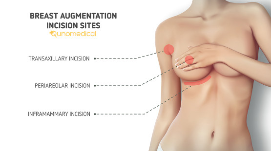 breast implant incision sites
