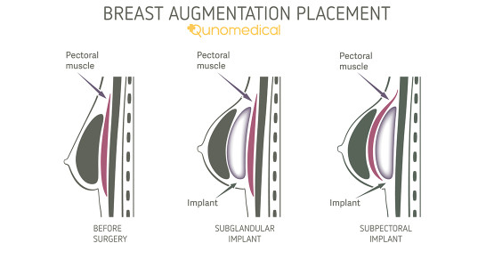 breast implant placement