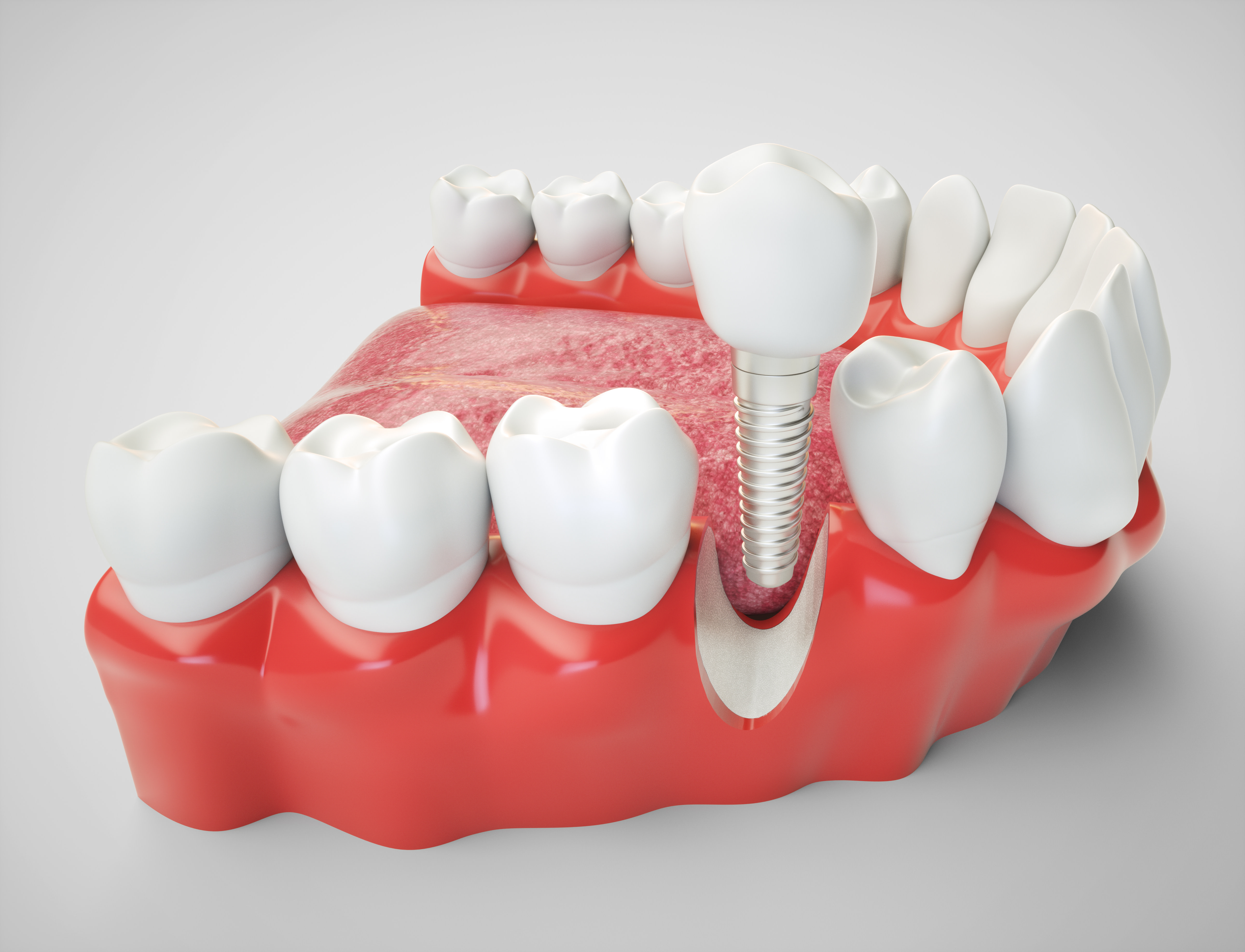 How To Deal With Or Salvage A Failing Dental Implant Manual Guide