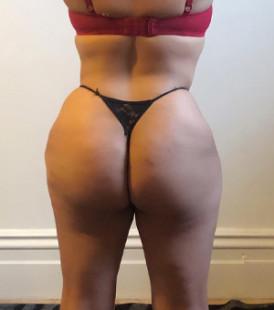 Brazilian buttock lift hamburg