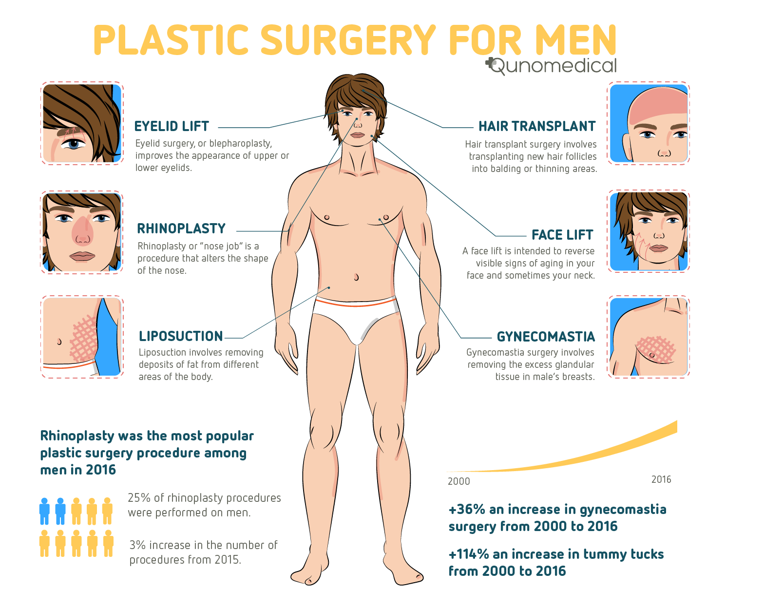 Plastic Surgery For Men Trends And Procedures Qunomedical