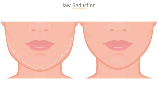 Facial procedure res