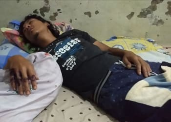Edi Surahman alias Atok kondiis luka akibat dianiaya Aseng