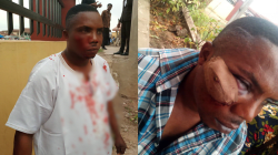 APC, PDP Supporters Clash At Ondo Tribunal, Many Injured