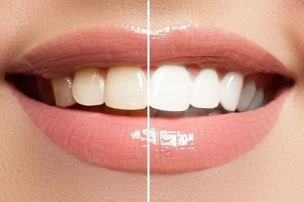 Ultimate Guide To Teeth Whitening Kits