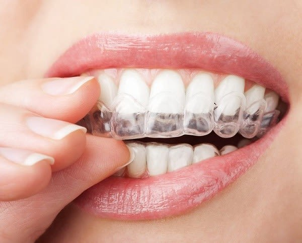 A Guide To Purchasing The Best Teeth Whitening Kits