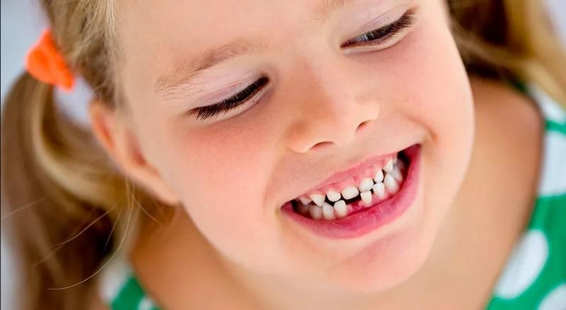 detskie-zuby-chto-est-chtoby-ne-khodit-k-stomatologu