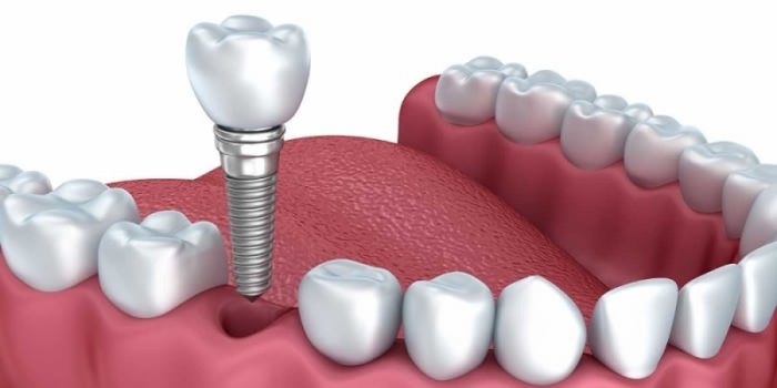 Broken front teeth problem – need dental surgery