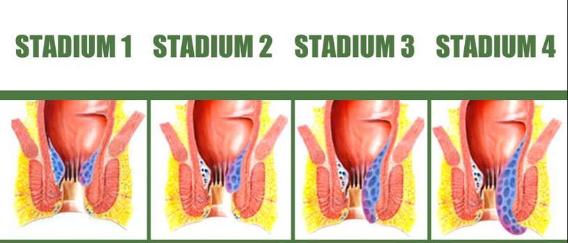Pengobatan wasir stadium 1 2 3 4