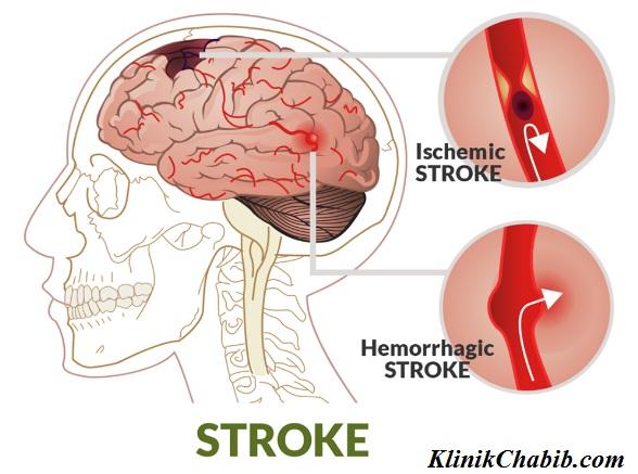 Jenis Stroke