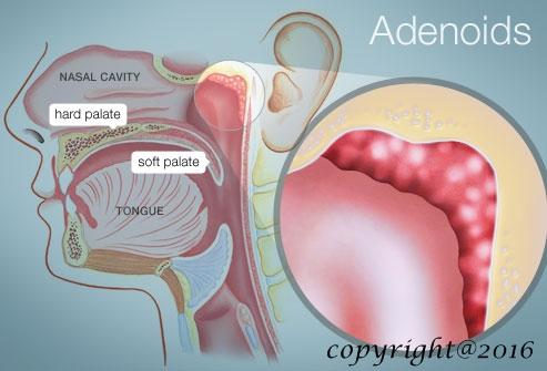 Penyakit adenoid