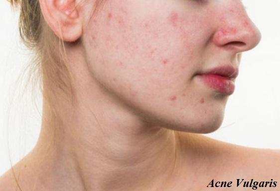Penyakit akne vulgaris
