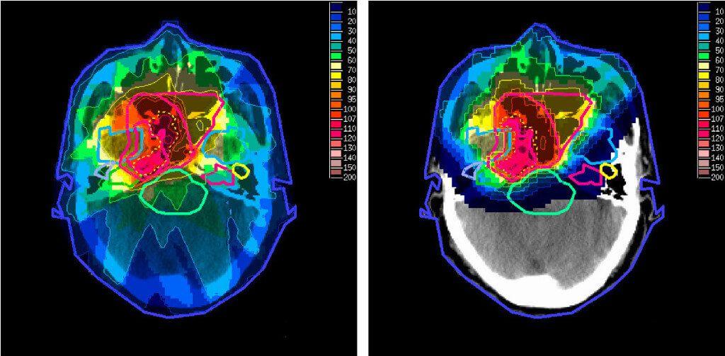 Сравнение дозы, получаемой различными областями головы при рентгенотерапии (слева) и протонной терапии (справа) опухоли в носоглотке.