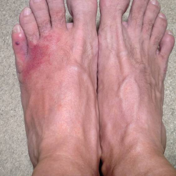 Inflammation, and redness in the left foot, compared to the right