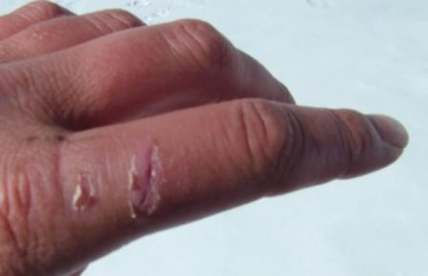 Latest on the finger