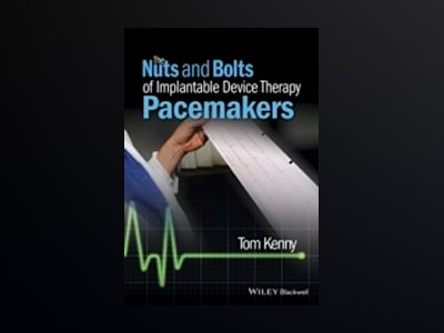 The Nuts and Bolts of Implantable Device Therapy: Pacemakers av Tom Kenny