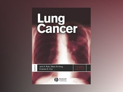 Lung Cancer, 3rd Edition av Jack A. Roth