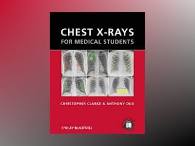 Chest X-rays for Medical Students av Christopher Clarke
