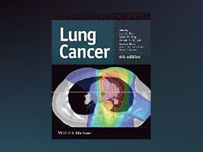 Lung Cancer, 4th Edition av Jack A. Roth