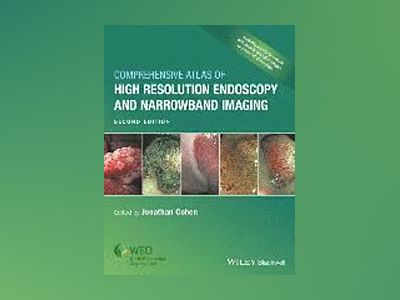 Comprehensive Atlas of High Resolution Endoscopy and Narrowband Imaging, 2n av Jonathan Cohen