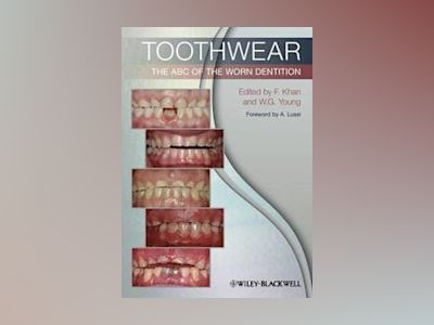 Toothwear: The ABC of the Worn Dentition av Farid Khan