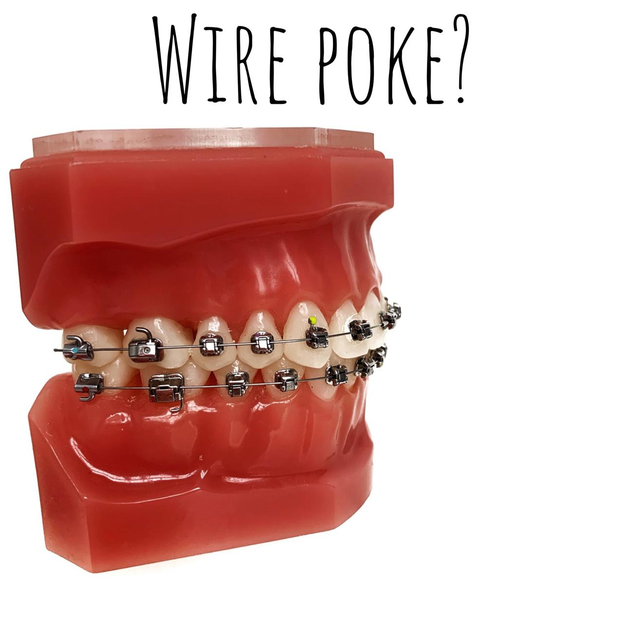 Wire Poke?