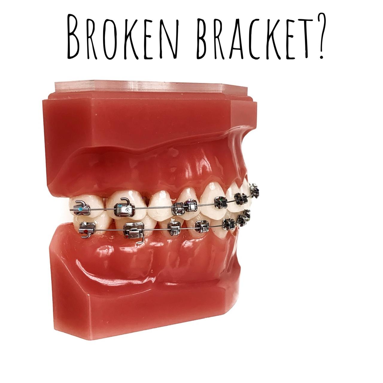 Broken Bracket?