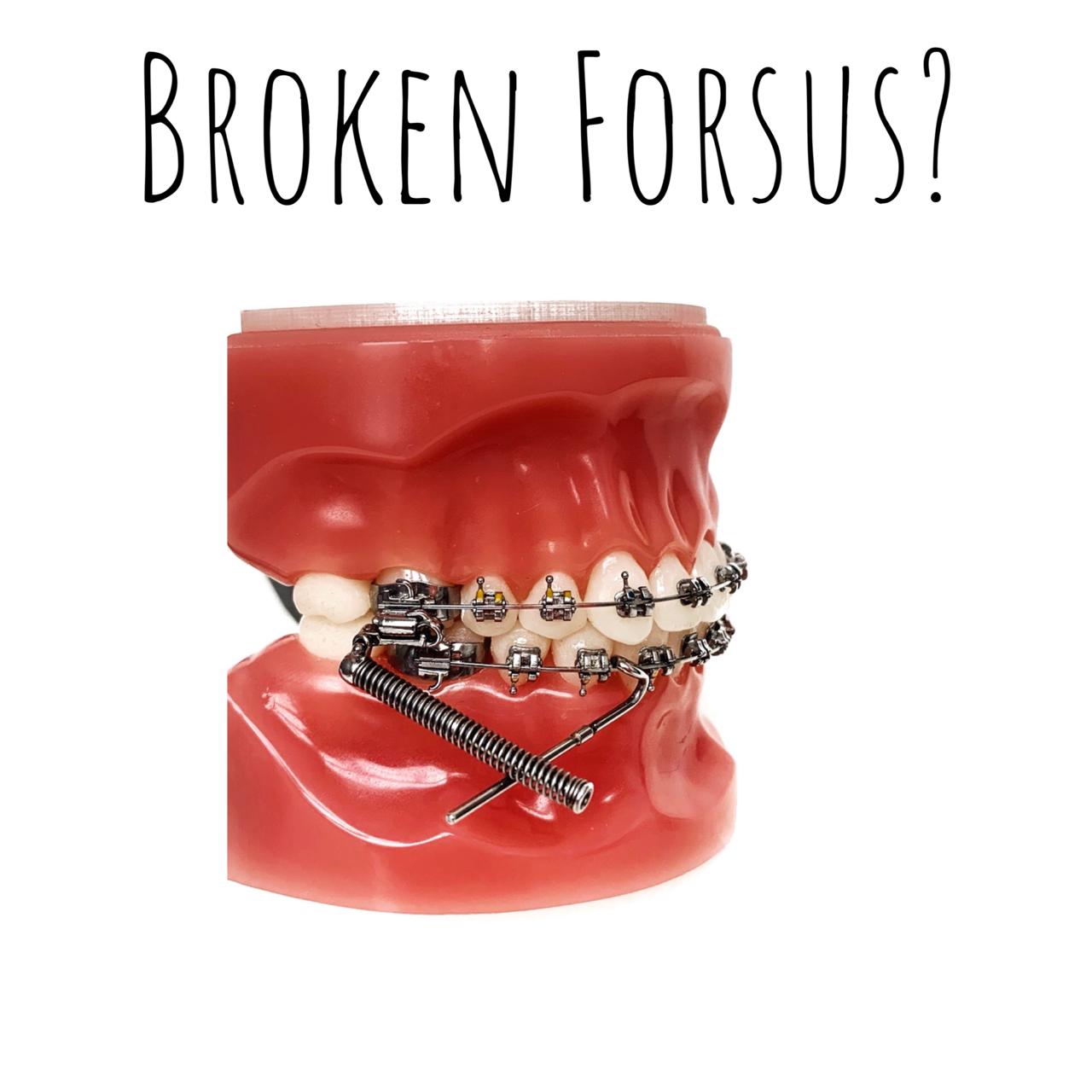 Broken Forsus?