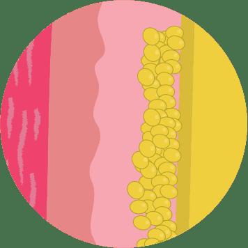 Illustration of stubborn fat