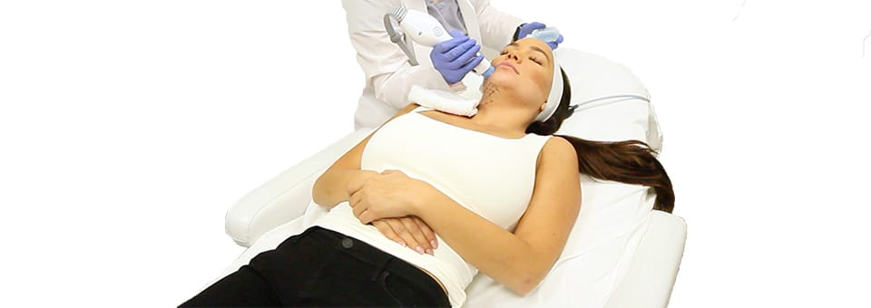 Coolsculpting on stomach