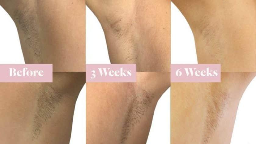 Laser Hair Removal | LaserAway