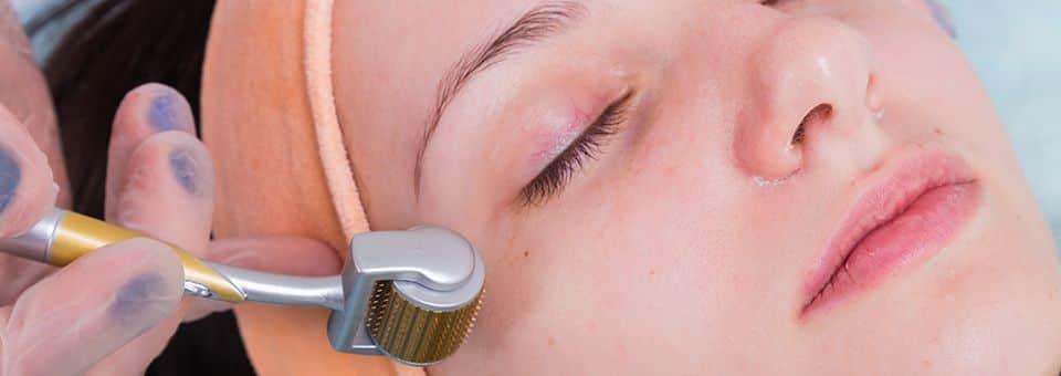 microneedling vs laser facial