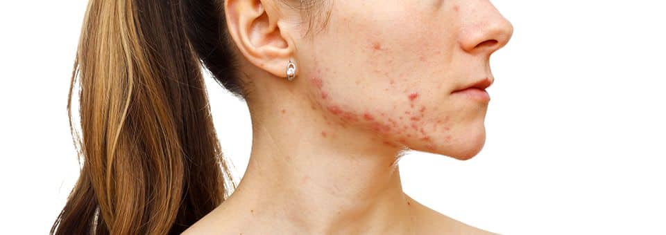 Does IPL help acne breakouts