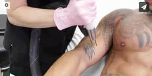 Laser tattoo removal near me