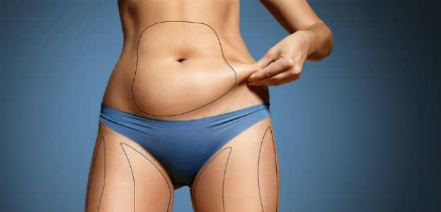 Benefits And Risks With Laser Lipo Miami Lakes