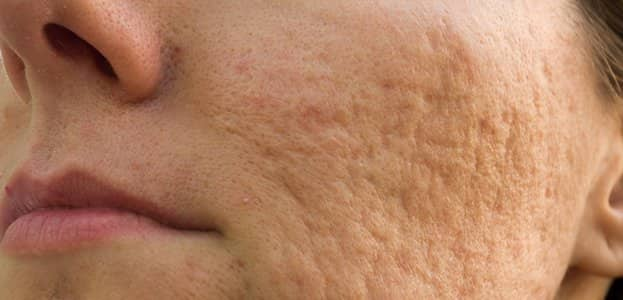 how to remove pitted acne scars