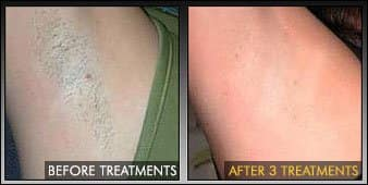 A Smooth Finish To Your Laser Hair Removal Session Laseraway