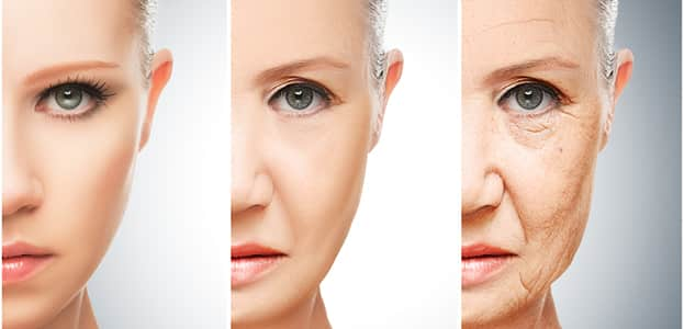 what is a thermage treatment