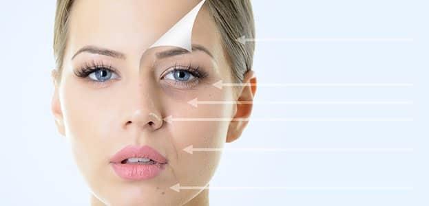 Botox Treating Lines & Wrinkles