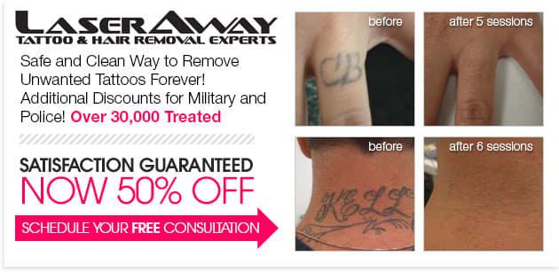 Laser Tattoo Specials
