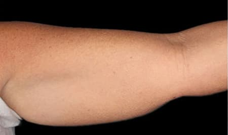 Cool Sculpting results on underarm fat