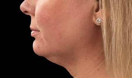 Cool Sculpting results on turkey chin skin fat