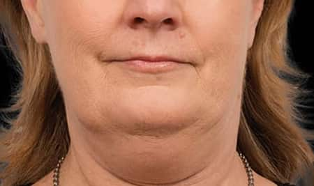 Cool Sculpting results on turkey neck skin