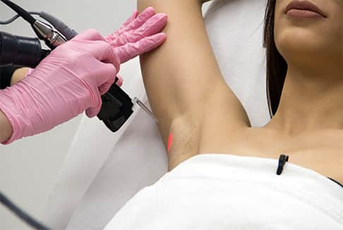 Hair of women's armpit being removed via laser