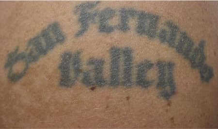 tattoo removal before