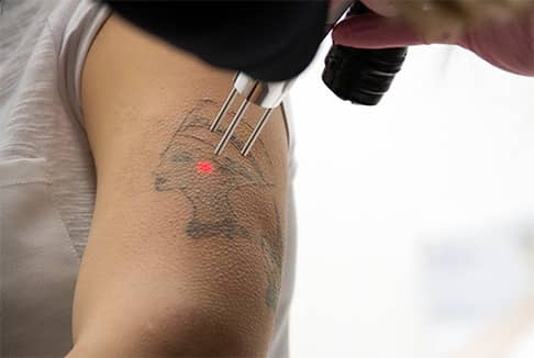 Man undergoing laser tattoo removal procedure in Scottsdale, Arizona
