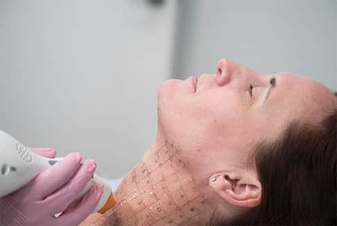 Lady getting Thermage procedure on neck area