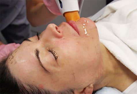 Woman getting Thermage NXT treatment in Scottsdale, AZ at LaserAway