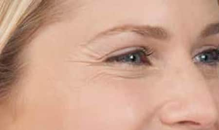 Botox Results Before And After Of Woman's Face